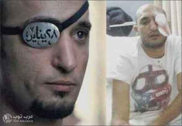 صورة الشاب المصري الذي فقد عينه اليمنى في 28 يناير .. واليسرى في 19 نوفمبر !