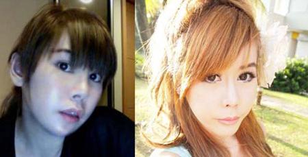الفتاة قبل وبعد عمليات التجميل