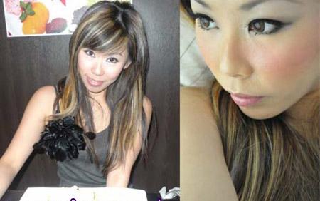 الفتاة قبل عمليات التجميل