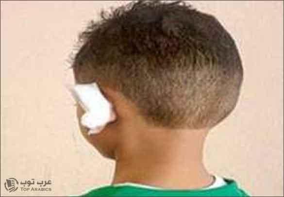 السعودية : حلاق يقطع أذن طفل و السبب عطسة ! صورة الطفل