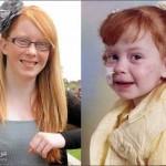 صورة ميغان ستيوارت الشابة التي لا تستطيع تمشيط شعرها ، وبالجانب صورتها عندما كانت طفلة