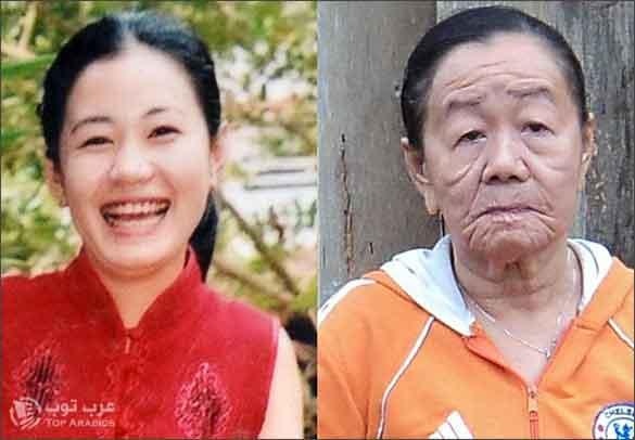 صورة فوونغ الشابة التي تحولت الى عجوز بعدما اكلت وجبة مأكولات بحرية !