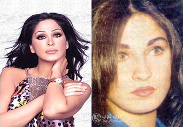 صور اليسا قبل وبعد عمليات التجميل
