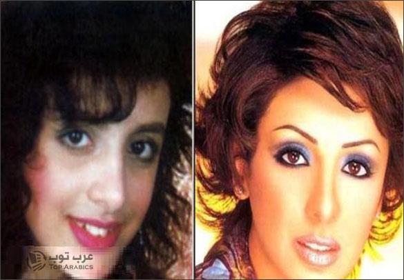 صور انغام محمد علي قبل وبعد عمليات التجميل