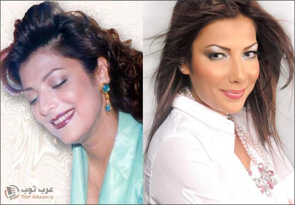 صور اصالة نصري قبل وبعد عمليات التجميل