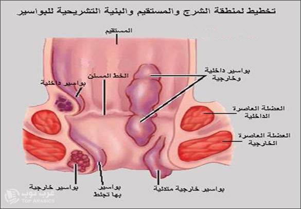 مرض الباسور