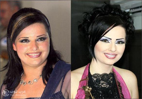 صور ديانا كرزون قبل وبعد عمليات التجميل