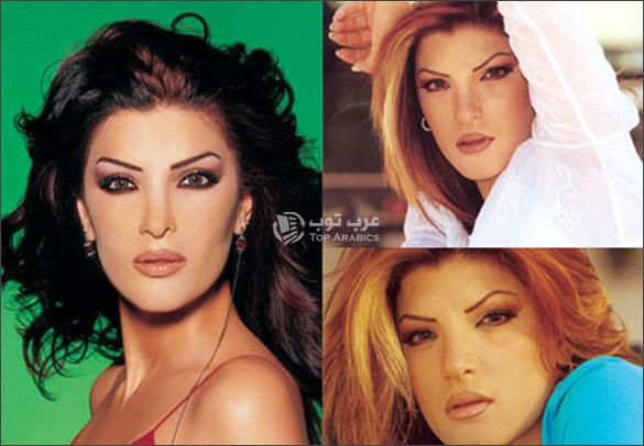 صور دينا حايك قبل وبعد عمليات التجميل
