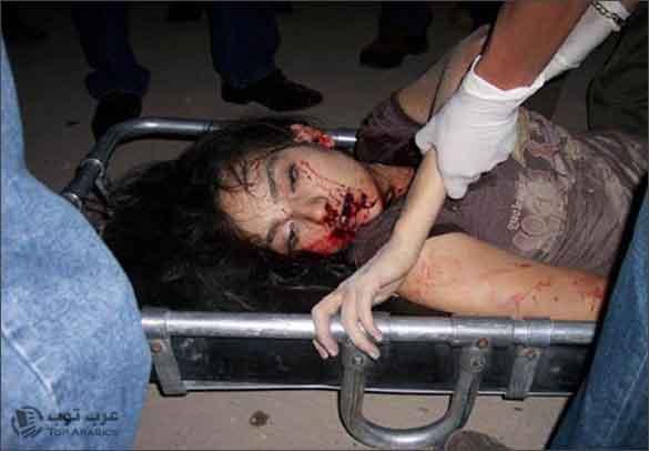 صورة الشابة البرازيلية والتي نشرت على أساس أنها صور مقتل علياء المهدي