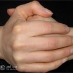 اضرار فرقعة الاصابع