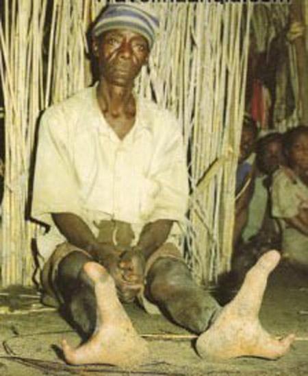 صور قبائل افريقة تمتلك اقدام غريبة تشبه اقدام النعام
