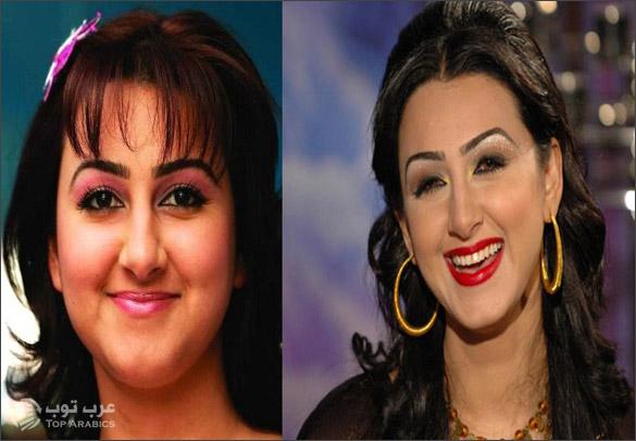 صور هيفاء حسين قبل وبعد عمليات التجميل