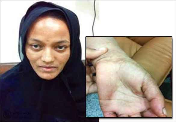 صورة الخادمة الاثيوبية القاتلة في الكويت كما نشرتها الصحيفة وفي الاطار آثار المقاومة على يدها
