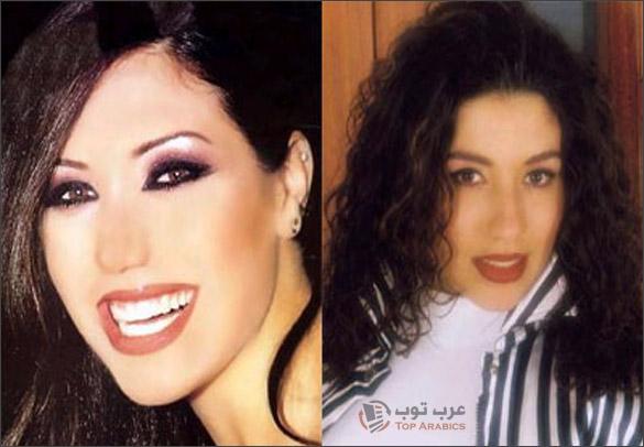 صور لورا خليل قبل وبعد عمليات التجميل
