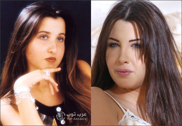 صور نانسي عجرم قبل وبعد عمليات التجميل