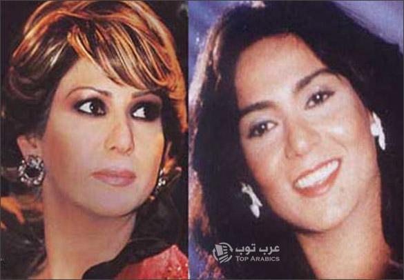 صور نوال الكويتية قبل وبعد عمليات التجميل