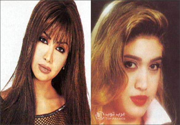 صور نوال الزغبي قبل وبعد عمليات التجميل