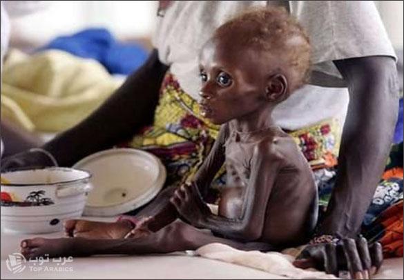 صور مجاعة الصومال